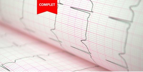 ECG Complet